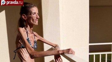Самая худая женщина в мире - (видео)