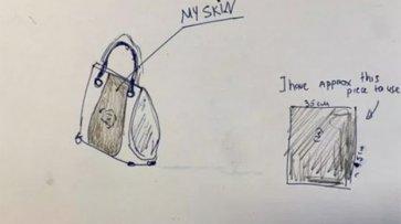 Женщина не захотела прощаться с ампутированной ногой и попросила сшить из нее сумку