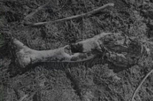 Полиция Башкирии разыскивает хозяина отрубленной ноги